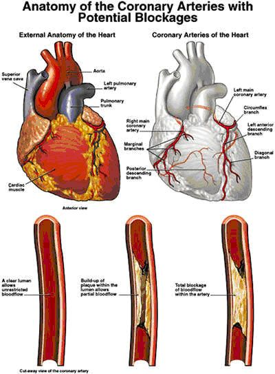 Google Image Result For Http Trcs Wikispaces Com File View Heart Attack 01 Jpg 43580729 Heart Attack Heart Attack Symptoms Heart Attack Myocardial Infarction
