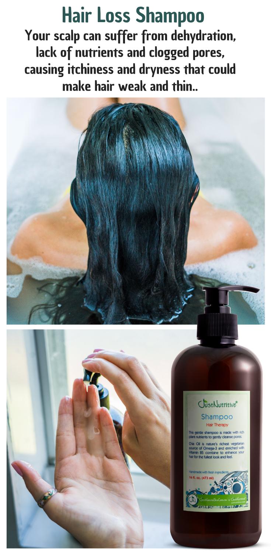 Hair Loss Therapy Shampoo Hair Loss Shampoo Hair Loss Therapy Hair Treatment