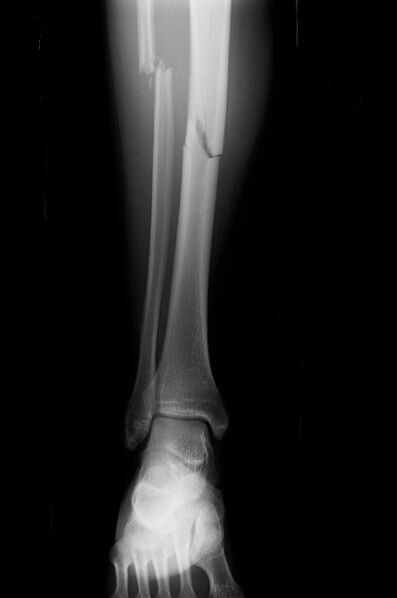 broken tibia recovery time