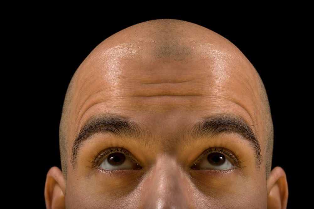 Dealing with hair loss why its important to let go
