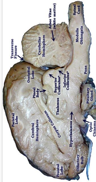 Pretty good picture of the sheep brain labeled. | Brain ... - photo#23