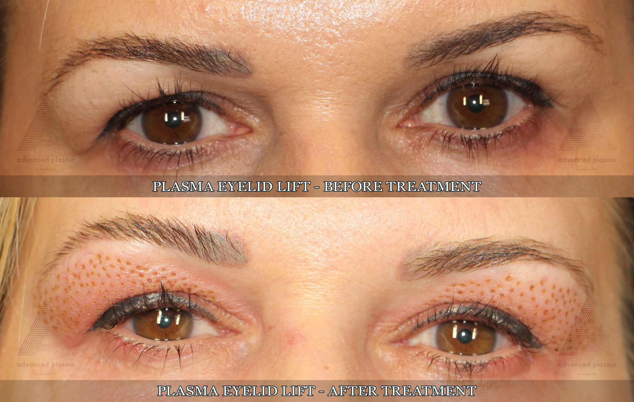 Plasma Eyelid Lift Treatment Non Surgical Skin Tightening