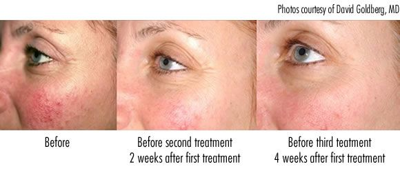 How to use red light therapy to heal rosacea redness pain see for yourself red light therapy before and after rosacea treatment solutioingenieria Gallery