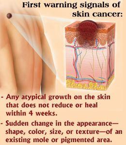 Basal Cell Skin Cancermust Be Identified In The Initial Stages To Avoid The Severity Of Spreading Out Bcc Looks Like Open Skincare And Makeup Tips