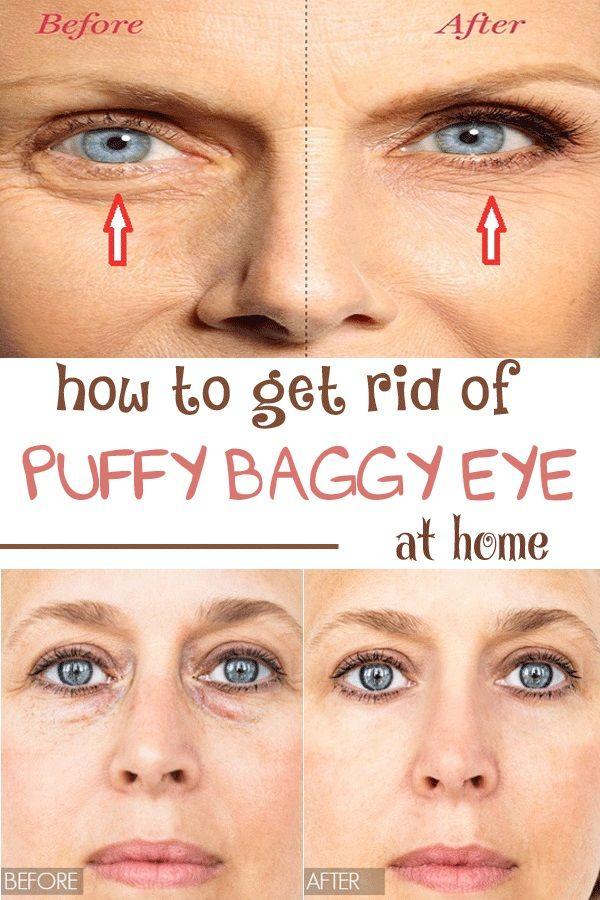 13598a052c532d05d3ecd8693df4a108 - How To Get Rid Of Puffy Eyes From No Sleep
