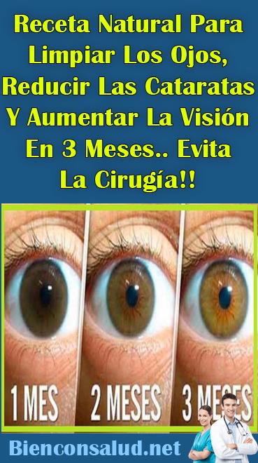 Receta Natural Para Limpiar Los Ojos Reducir Las Cataratas Y Aumentar La Visión En 3 Meses Evita La Cirugía Bien Con Salud Cuidado De Los Ojos Remedios Para La Salud