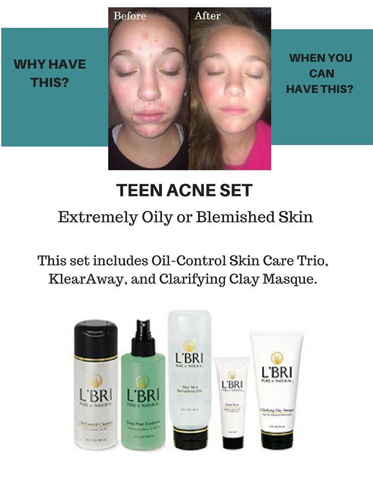 Aloe Vera Based Skin Care For Acne This Isn T Just For Teens Try A Sample Of L Bri S Skin Care Products Skin Care Skin Care Blackheads Skin Cleanser Products