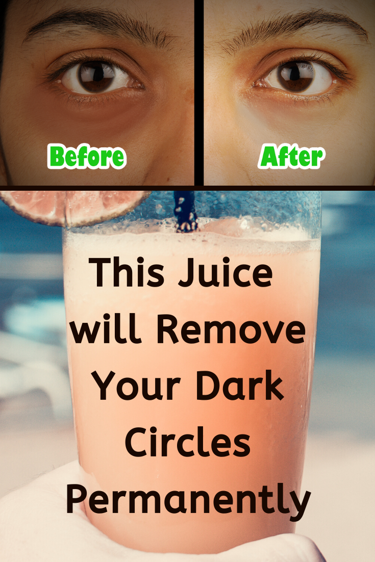 This Juice Will Remove Dark Circles Under Eyes Permanently ...