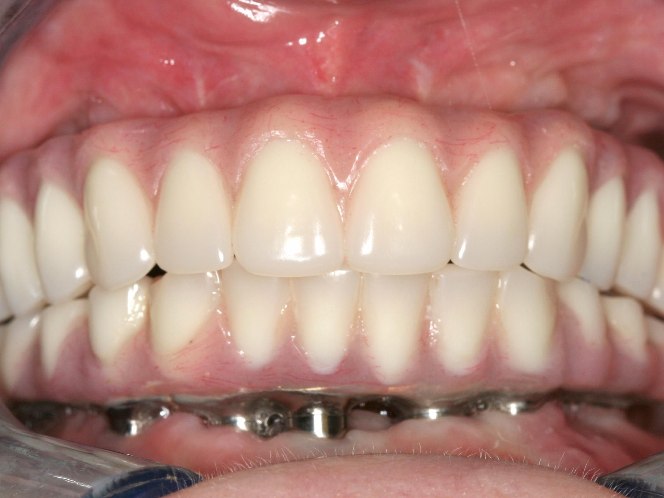 Here is the All on 4 Dental Implants to take care of your