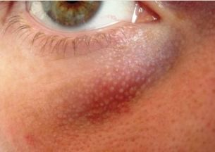 White Dots under the Eyes, what are they? | Beauty & health | Bumps
