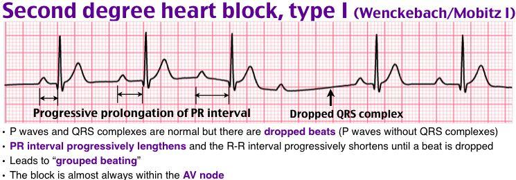 Rosh Review Heart Blocks Ecg Interpretation Medicine Notes