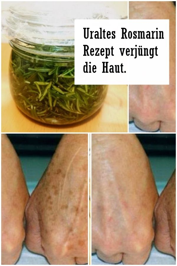 Photo of Ancient rosemary recipe rejuvenates the skin. – selected.info
