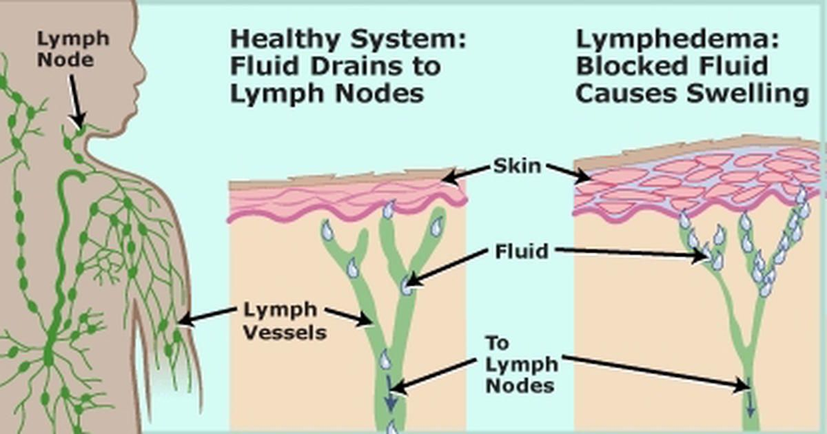 Lymph Nodes Or Lymph Glands Kidney Shaped Organs Of The