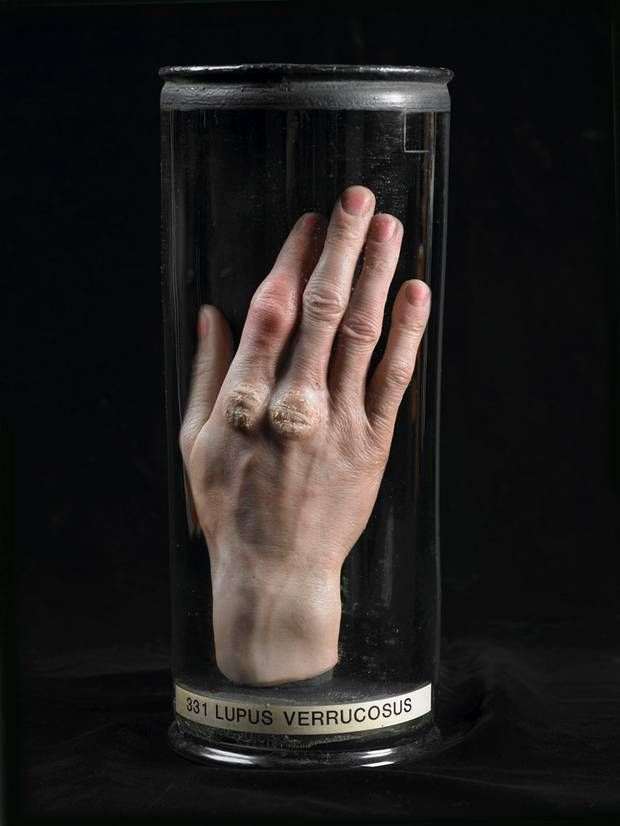 Wax model of hand with skin tuberculosis by Joseph Towne Gordon ...