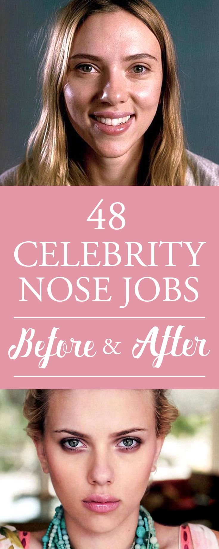 Celebrity nose jobs before and after nose job
