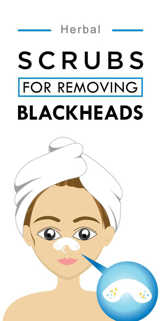 Got blackheads on face? Try this home made scrub -