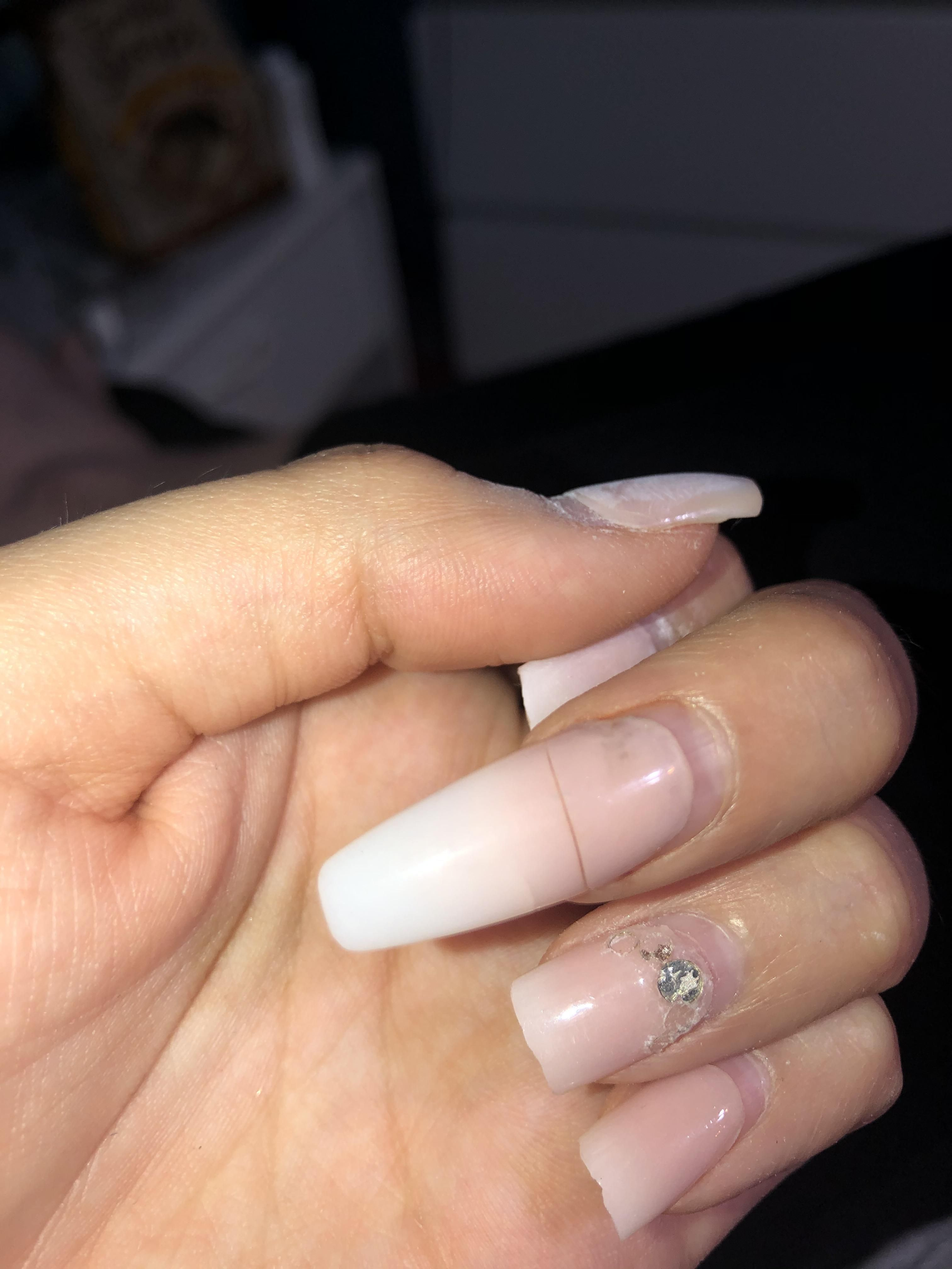 What Can I Do About This Nail It Hurts Really Bad Just To Touch It So I Cant Clip It And Would Probably Hurt To File It I Need I Fashion