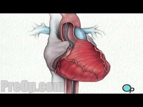 Balloon Angioplasty Coronary Angioplasty PreOp Patient
