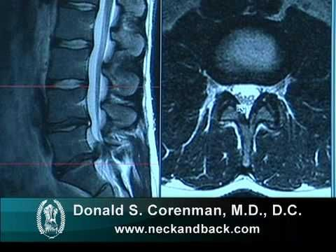 How To Read A Mri Of A Lumbar Herniated Disc Lower Back
