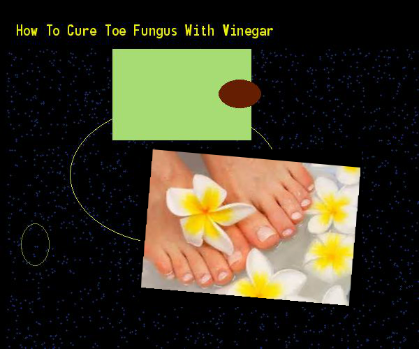 How to cure toe fungus with vinegar - Nail Fungus Remedy. You have nothing to lose! Visit Site Now