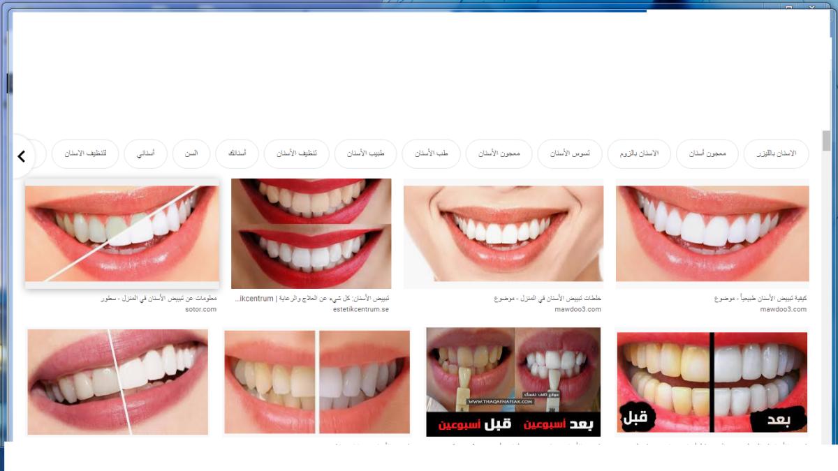 وصفات سهلة وبسيطة طبيعية لتحصلي على أسنان بيضاء ناصعة وتزيلي التصبغات