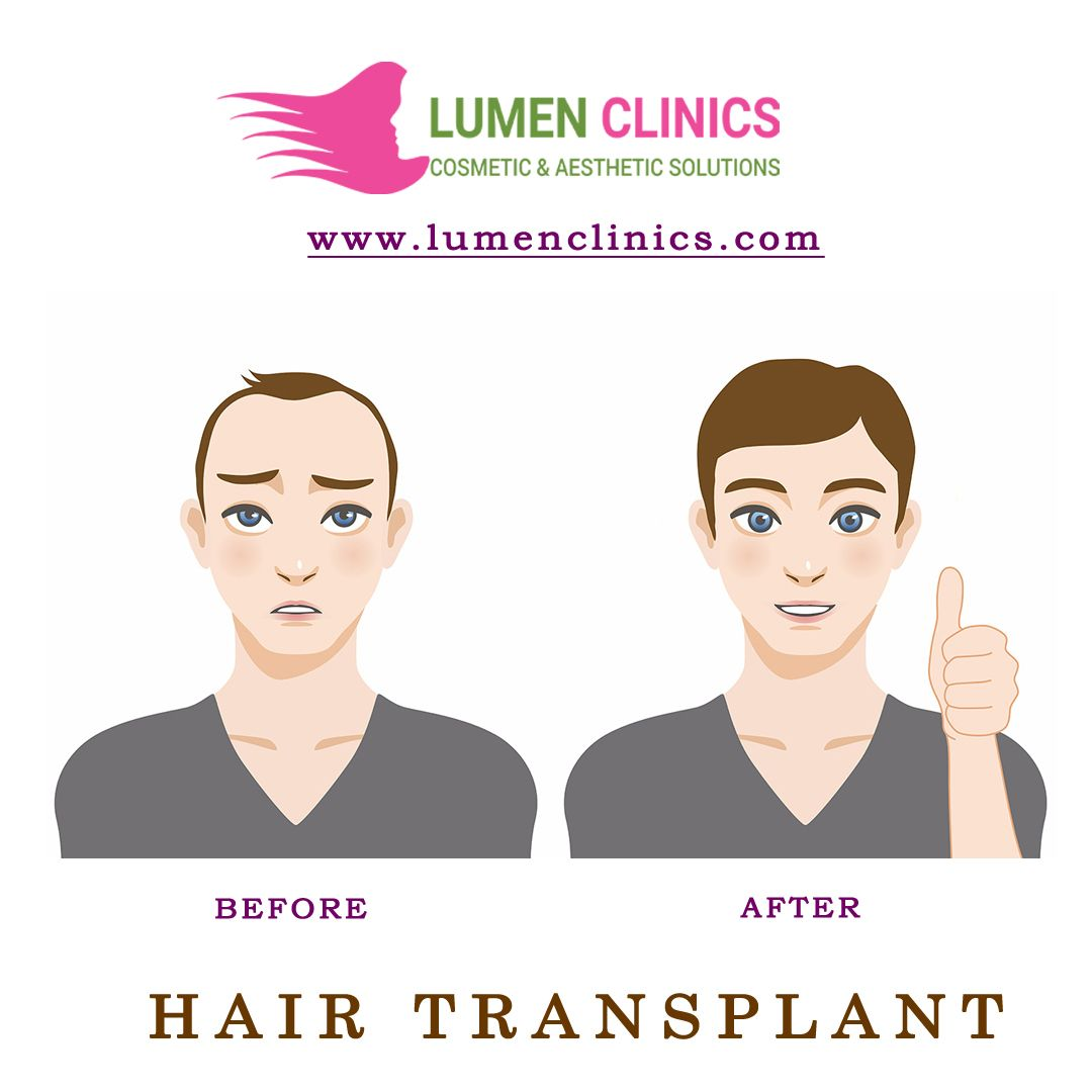 Getting a hair transplant done has a best option