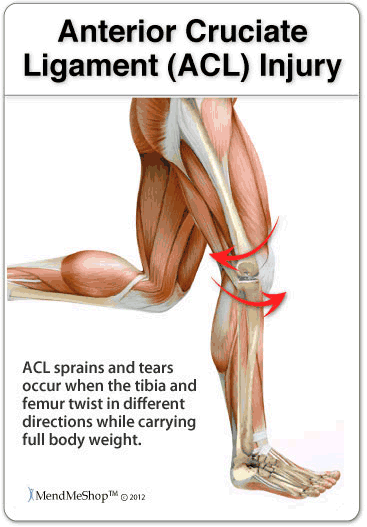 ACL (Anterior Cruciate Ligament) Injuries