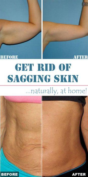 40 Crepey Skin Home Remedies Home Remedies For Skin Sagging Skin Crepey Skin
