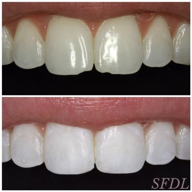 Front Teeth Chipped? | teeth | Front teeth, Teeth, Dental