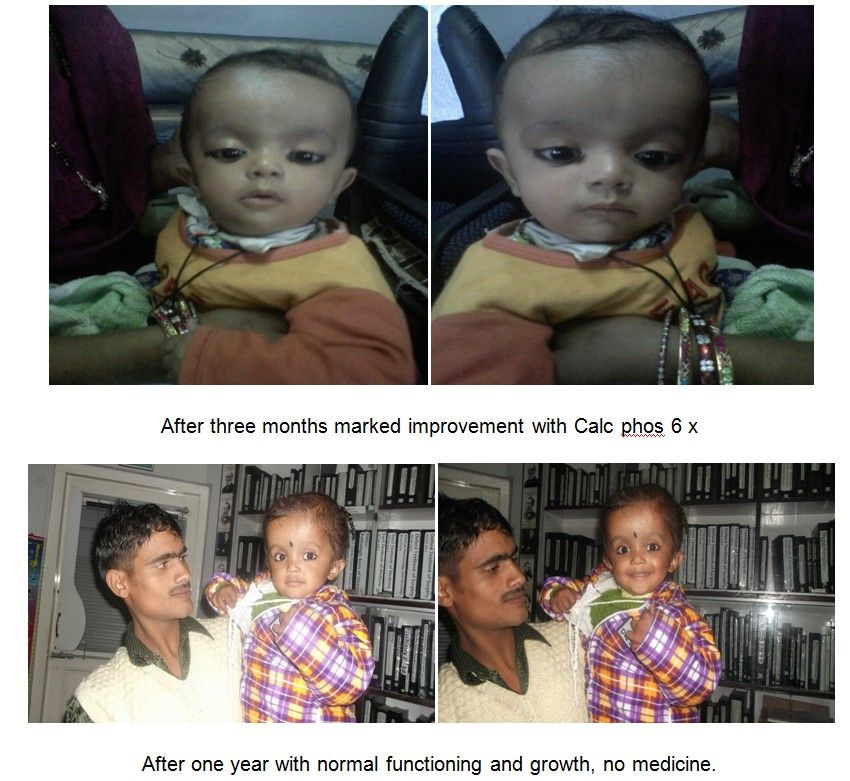 A Case of Hydrocephalus Cured with Homoeopathy - Homeopathy