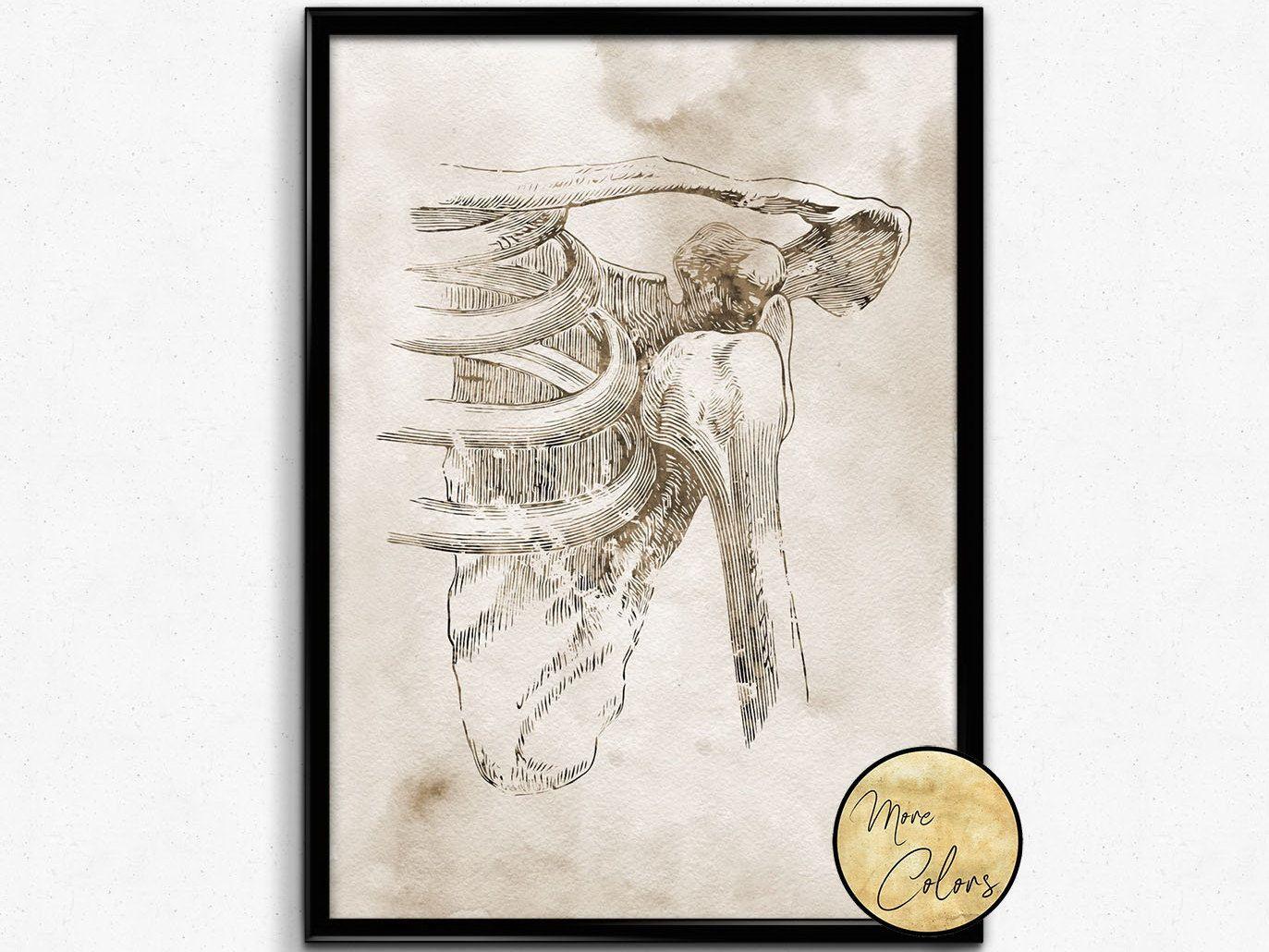 Shoulder dislocation, Medical Art, Science Art,Orthopedic