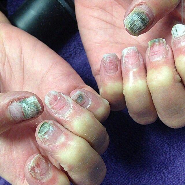 Image Result For Nail Drill Damage Cheap Nail Bad Nails Nail Conditions