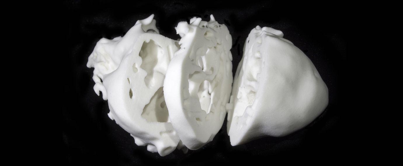 3D Modelle echter Herzen | WIRED Germany   Ärzte nutzen erstmals 3D-gedrucktes Modell, um Operationen an Herzen vorzubereiten