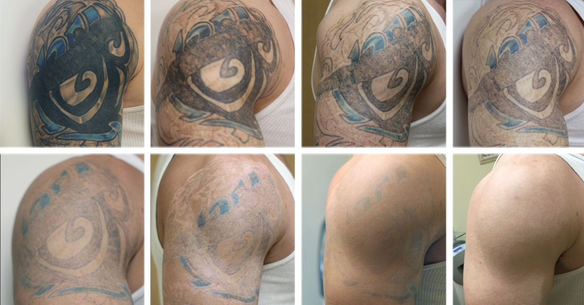 Laser tattoo removal stages tattoo removal pinterest