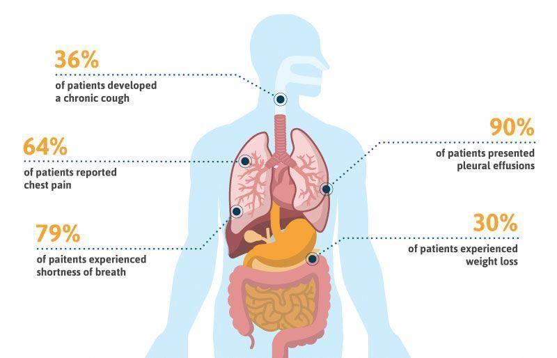 Mesothelioma Disease Mesothelioma Pleural Effusion Cancer