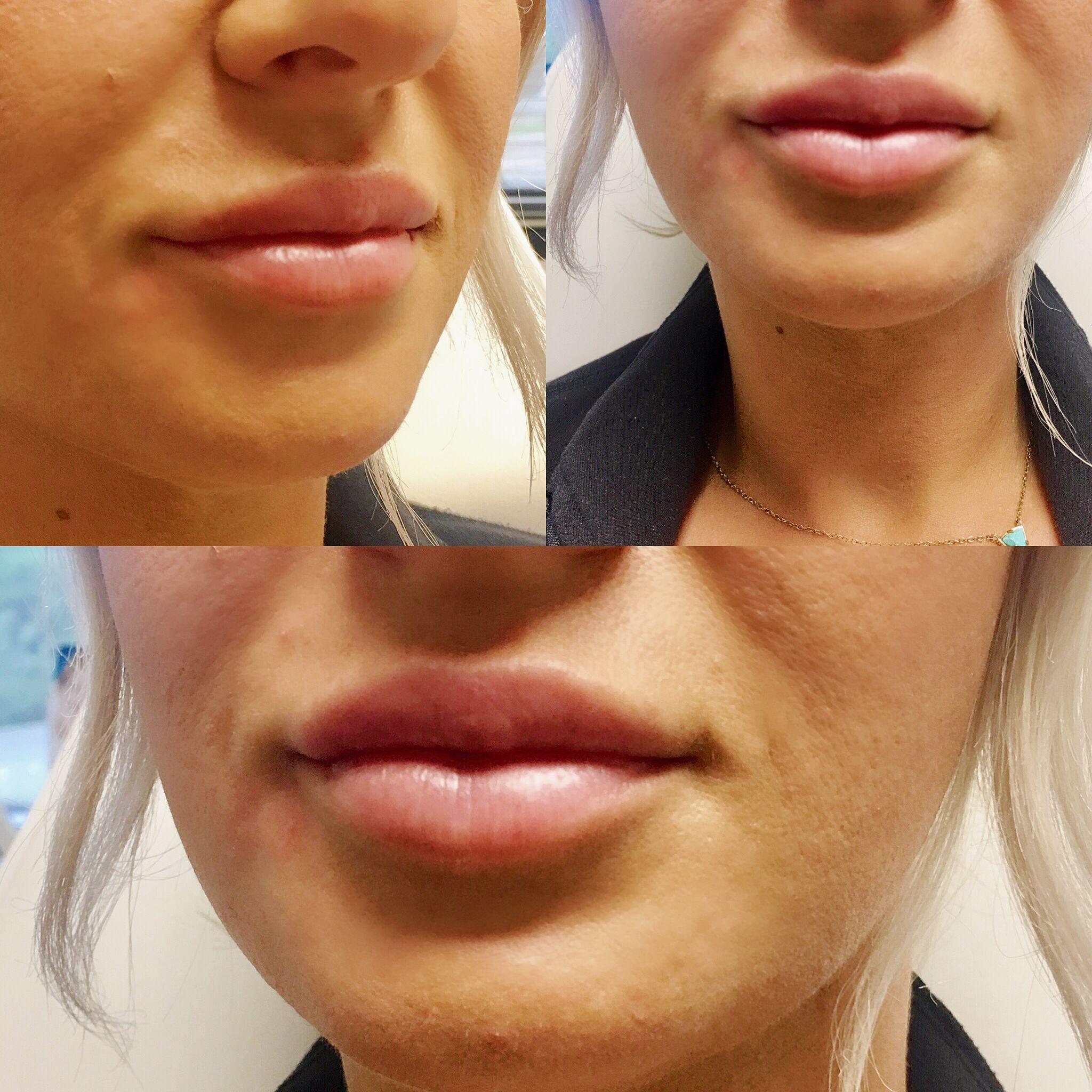 Professional Primp Juvederm lips, Juvederm
