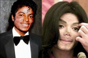 For Any Young Impressionable People Looking At This The One On The Left Is The Correct One To Copy Plastic Surgery Celebrity Plastic Surgery Michael Jackson