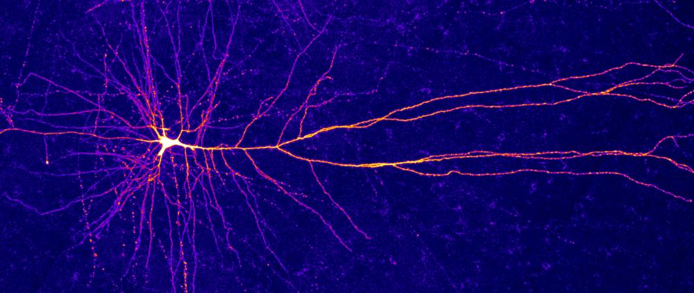 Neural Dendrites Reveal Their Computational Power Hidden