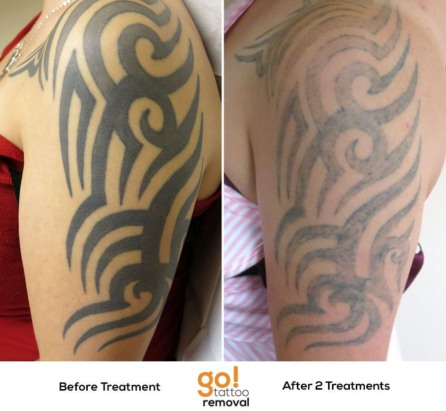 Tattoo Removal Final Results