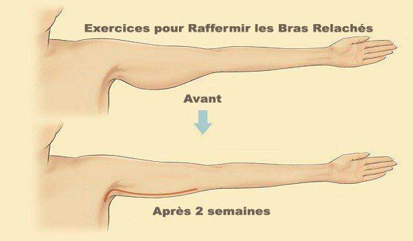 exercice pour triceps femme