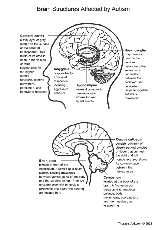 Brain Structures Affected by Autism | Therapist Aid | Because I'm ...