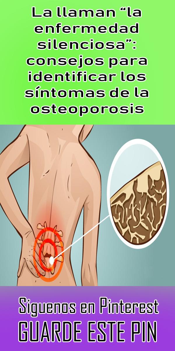 30+ Sintomas de osteoporosis en los pies viral