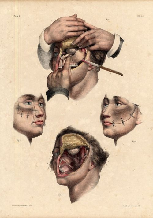 Thecadaverousportrait Antique Medical Anatomy Resection Upper