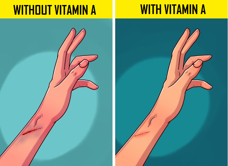7 Signs That Indicate A Vitamin A Deficiency In The Body