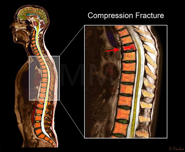 Color MRI Thoracic Spine Anatomy Compression Fracture   Chiropractic ...