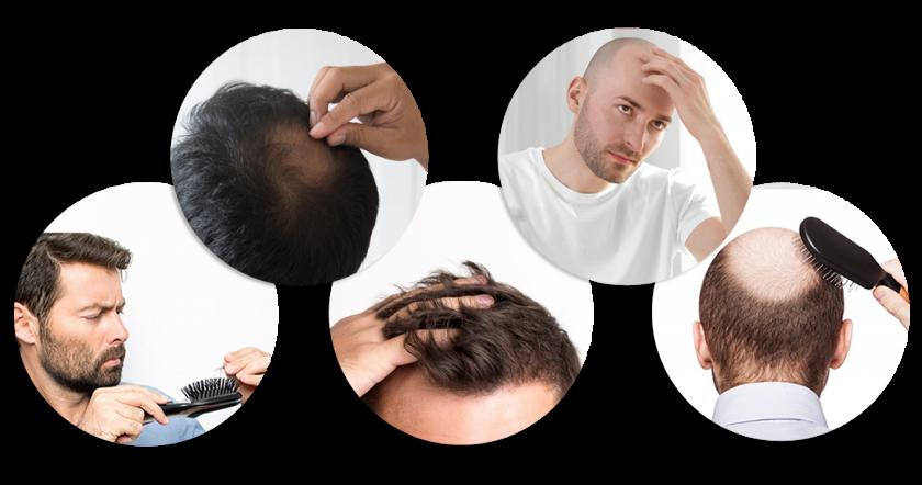 47+ Cara numbuhin rambut cepat ideas in 2021