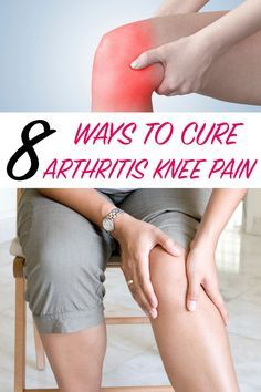 8 Ways To Cure Arthritis Knee Pain Home Remedy Pinterest