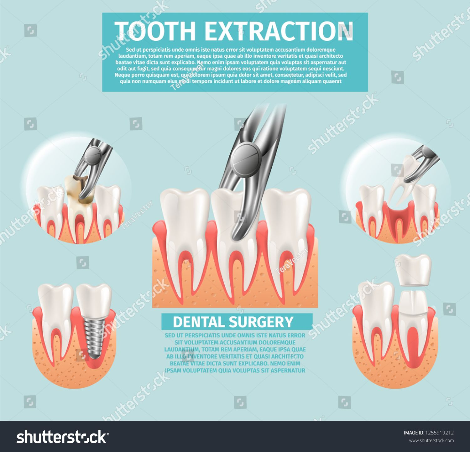 Realistic Illustration Tooth Extraction Vector 3d Banner Set Image Dental Surgery Procedures Tooth Ext Tooth Extraction Tooth Decay In Children Dental Surgery