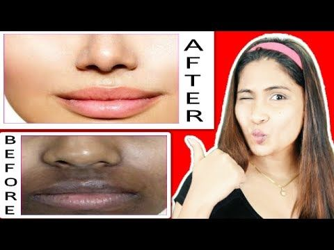 13decd47b81452ccff216c9cabdc8c08 - How To Get Rid Of Acne Scars And Hyperpigmentation Naturally