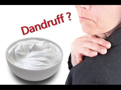 How to cure dandruff with Curd -  CLICK HERE for The No. 1 Itchy Scalp, Dandruff, Dry Flaky Sore Scalp, Scalp Psoriasis Book! #dandruff #scalp #psoriasis Here we provide homemade Health And Care tips for the health problems you face in your day to day life. In this video we show you How you can get rid of your dandruff using... - #Dandruff